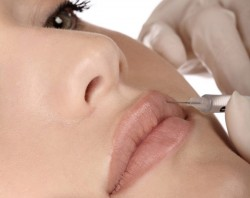 تزریق هیالورونیک اسید در لب