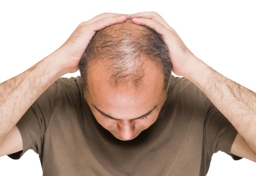 درمان ریزش مو با فیناستراید